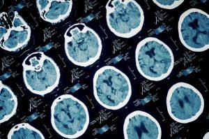 Traumatic Brain Injury Can Increase Risk of Dementia