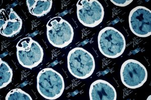 traumatic brain injury in tennessee
