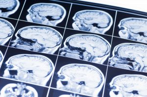 Different Types of Traumatic Brain Injuries