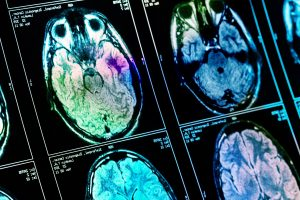 Traumatic Brain Injury and the Link to Post-Traumatic Stress Disorder