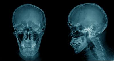 Traumatic Brain Injury Tennessee